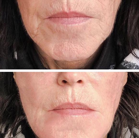 ovale du visage par acide hyaluronique