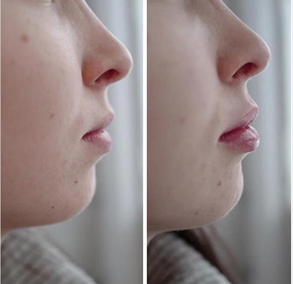 lèvres acide hyaluronique par le Dr Delaoustre