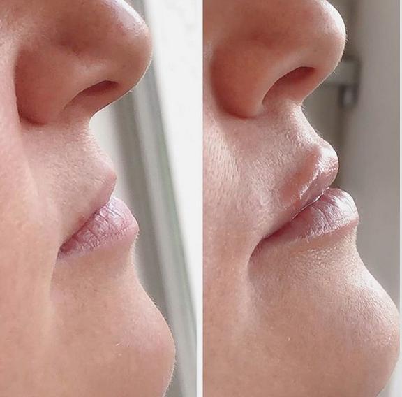 lèvres par acide hyaluronique