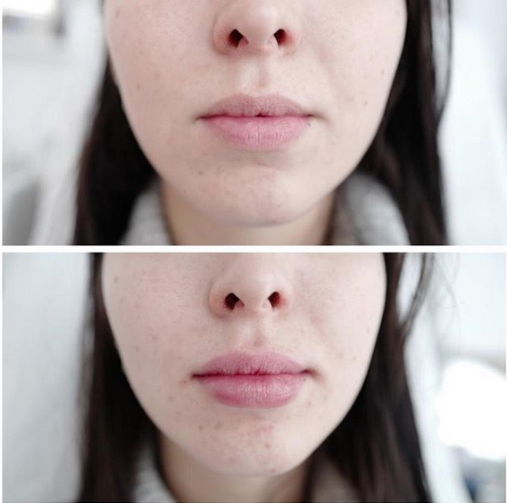 lèvres par acide hyaluronique lille