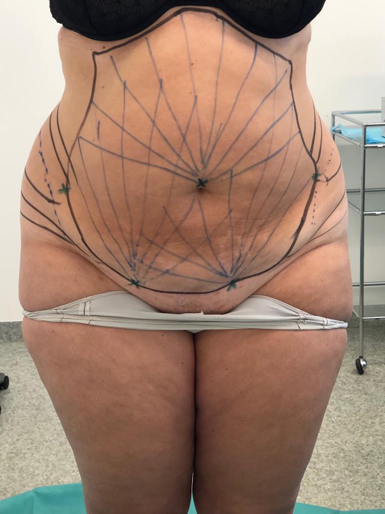 liposuccion avant Dr Delaoustre